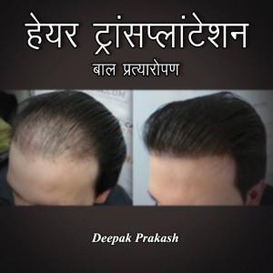 HAIR TRANSPLANTATION बुक deepak prakash द्वारा प्रकाशित हिंदी में